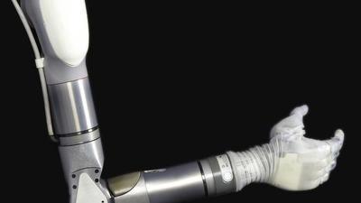 Dean Kamen 对残障人士的关怀不只是平衡轮椅,还有即将上市的 Luke 义肢