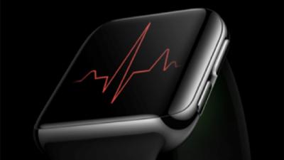 心电检测已获国家药监局认证,OPPO Watch ECG 版 9 月 24 日发布