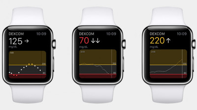未来 Apple Watch 将支持血糖、体温、酒精、深水检测,但 Series 7 改进很小