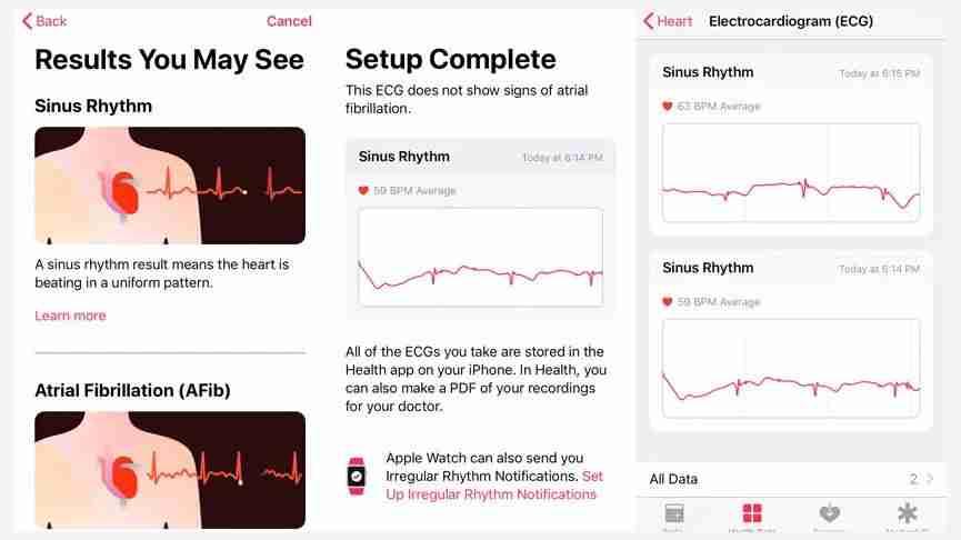 7-Apple Watch ECG 读取心电结果