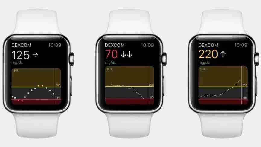 4-Dexcom x Apple Watch